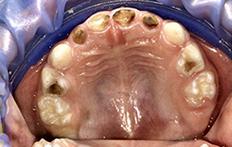 Хворі корневі канали