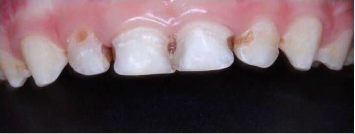Кариес 4х передних зубов