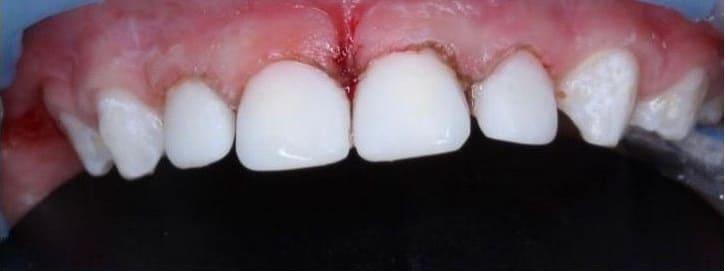 Зубы после лечения кариеса