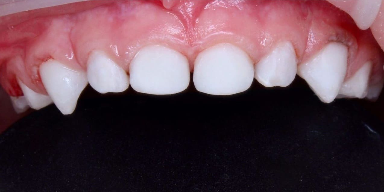 Зубы после реставрации фотополемерами