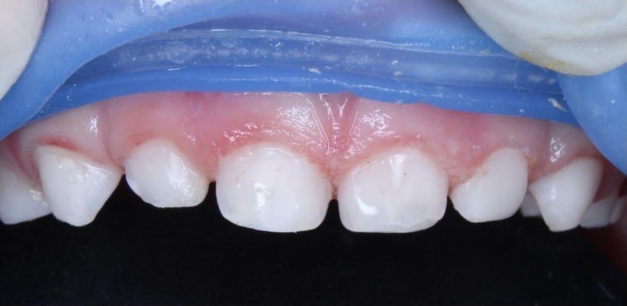 Реставрация зубов фотополимером