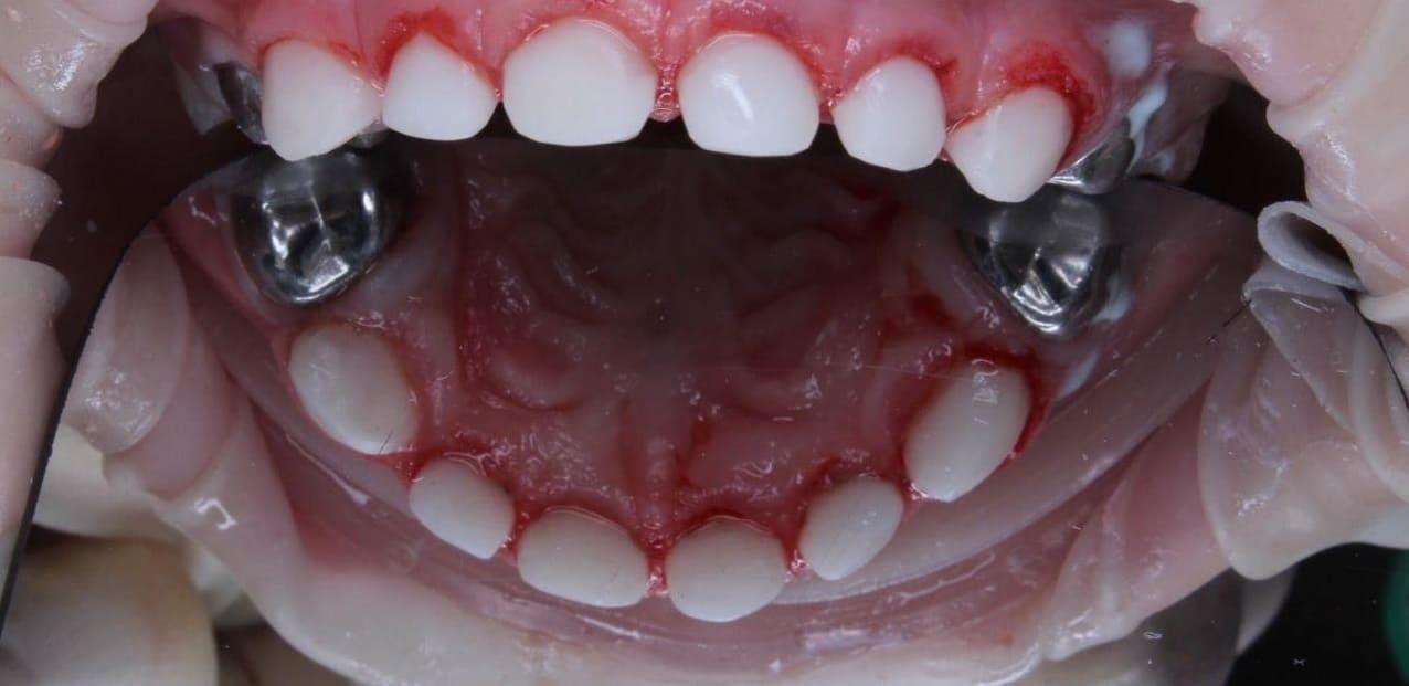 Реставрация зубов фотополимером и коронками