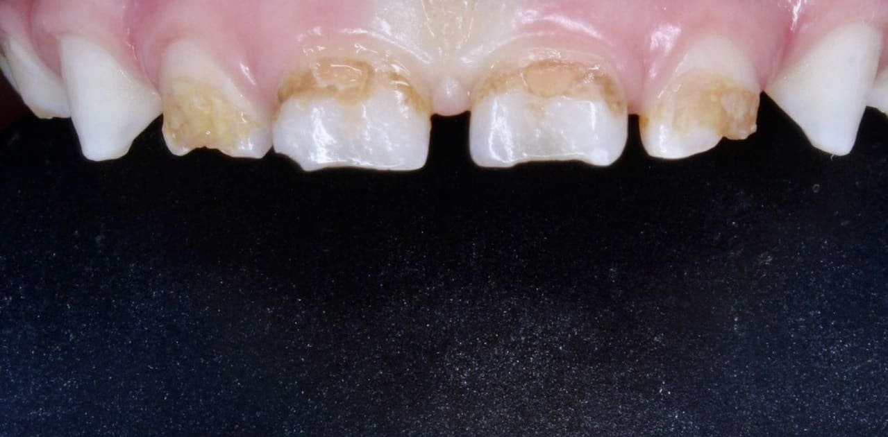 Кариес 4х зубов