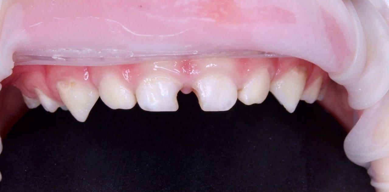 Зруйновані зуби
