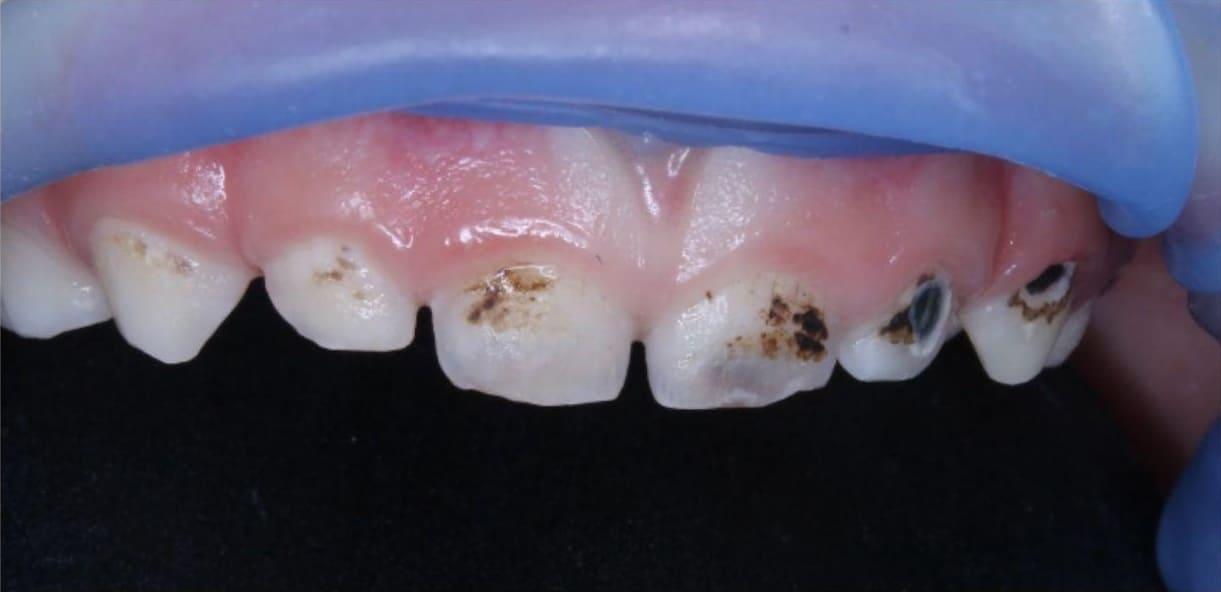 Зуби після серебріння