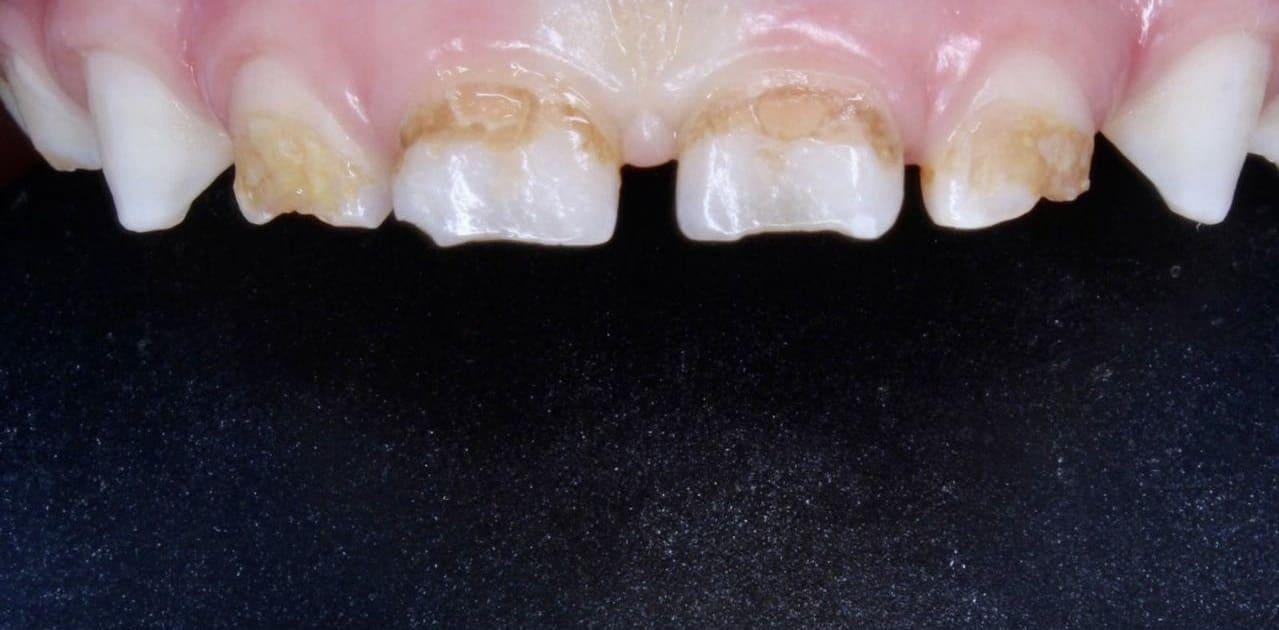 Карієс 4х зубів